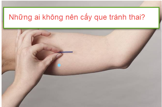 nhung-ai-khong-nen-cay-que-tranh-thai