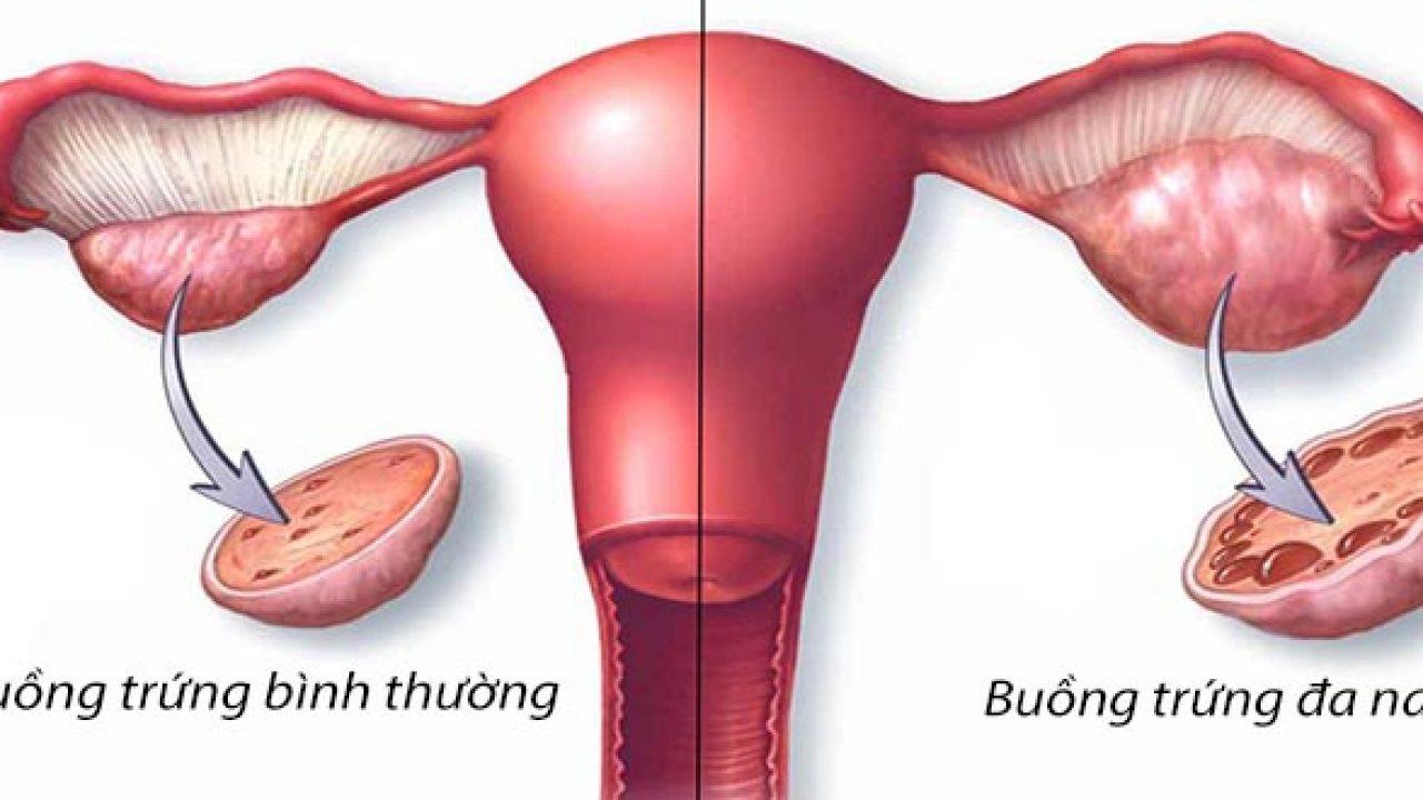Mắc các bệnh lý như đa nang khiến chị em dễ bị rong kinh rong huyết