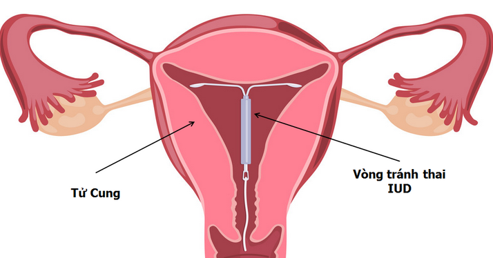 Chọn đặt vòng tránh thai IUD giúp bạn giảm đau bụng kinh và giảm lượng máu kinh.