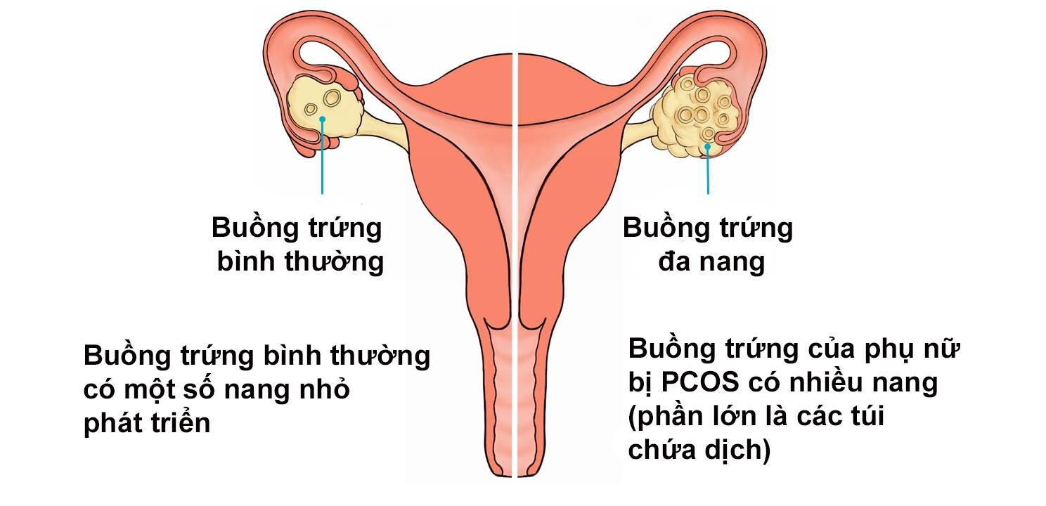Đa nang buồng trứng, suy buồng trứng ảnh hưởng đến chu kỳ kinh