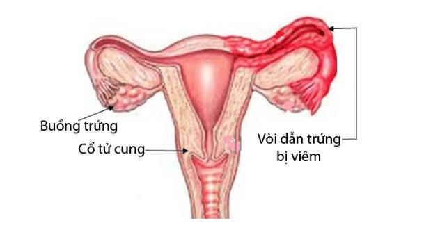 Hình ảnh vòi dẫn trứng bị viêm
