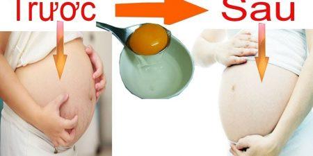 Dùng lòng trắng trứng gà trị rạn da không chỉ đảm bảo an toàn mà còn mang lại hiệu quả hơn cả mong đợi.